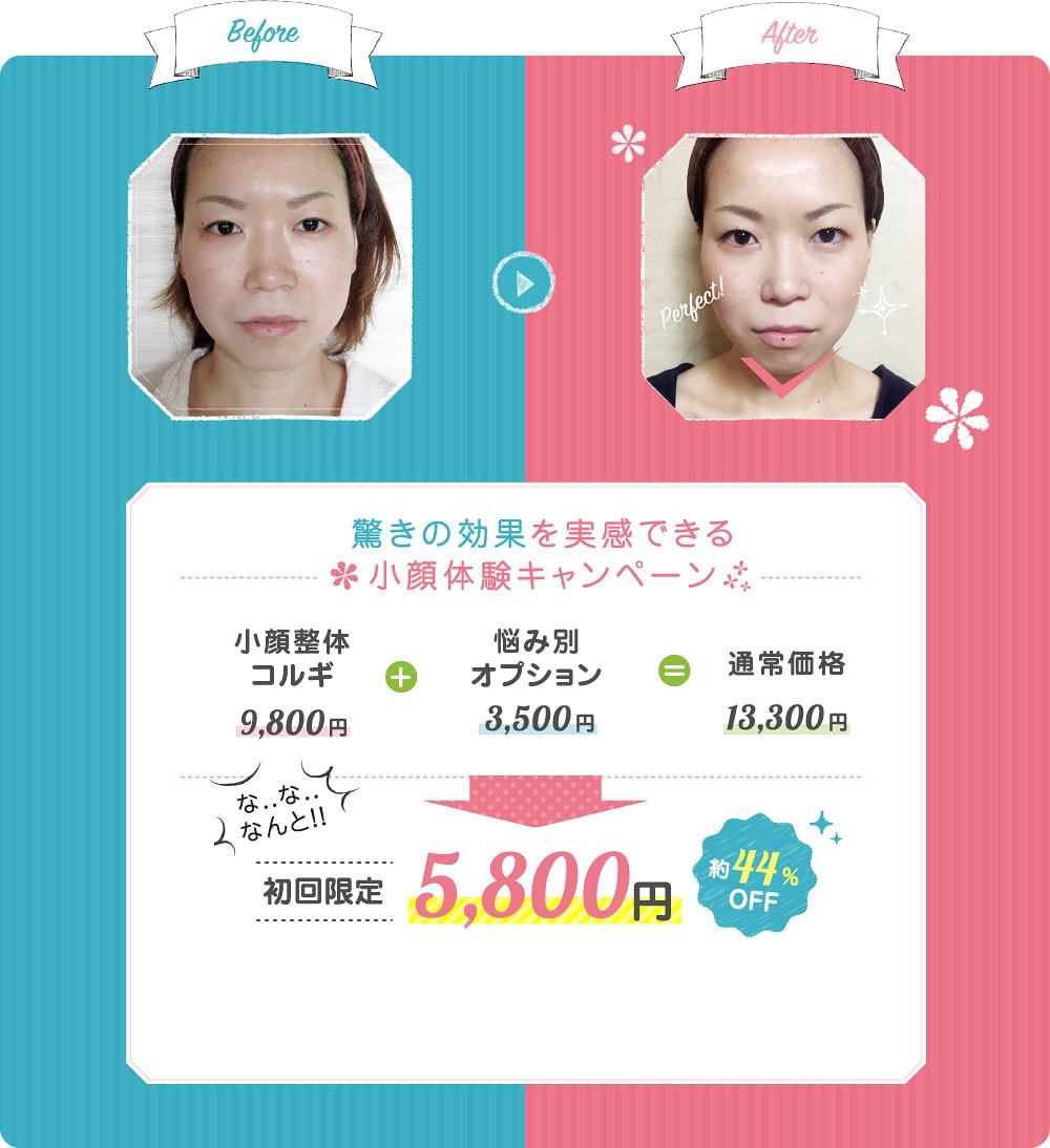 小顔体験キャンペーン
